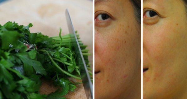 Remove Brown Spots With This Parsley Tonic Recipe