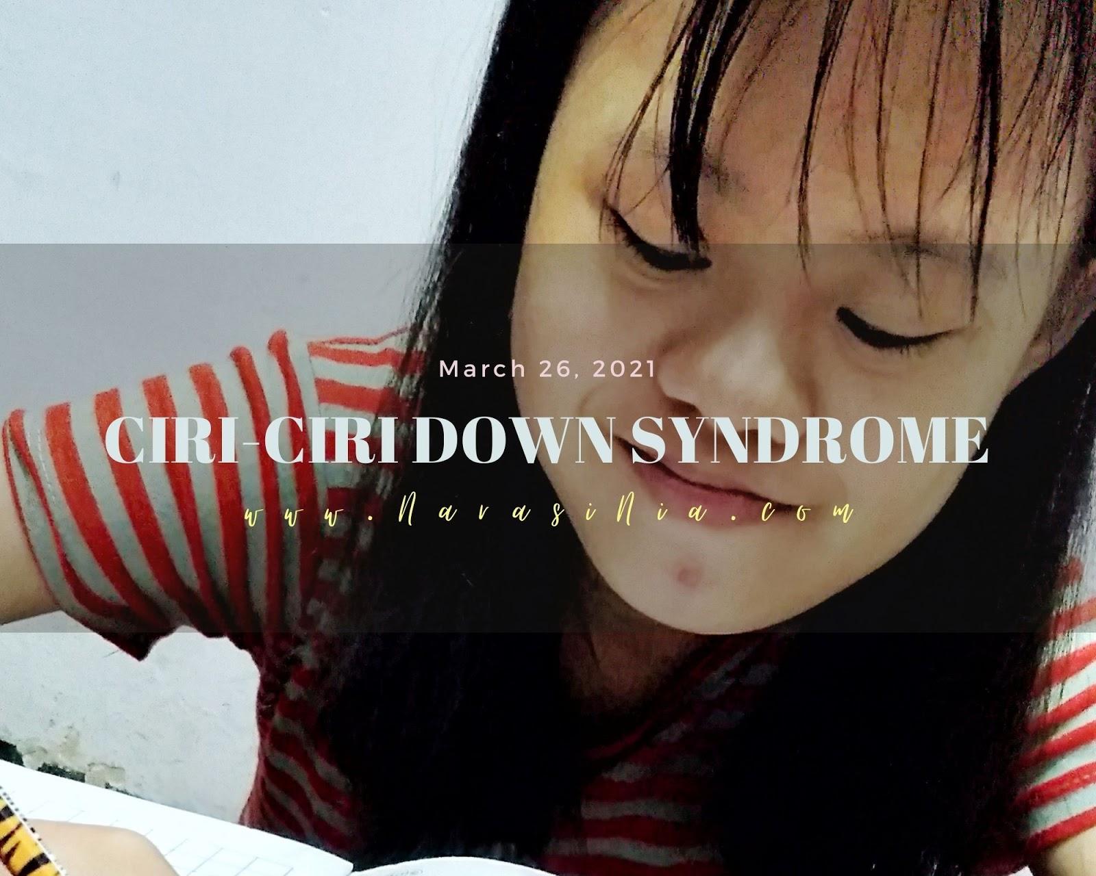 Ciri bayi down syndrome