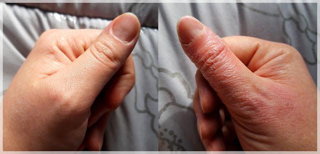 main gauche saine, main droite atteinte de psoriasis sur le pouce notamment