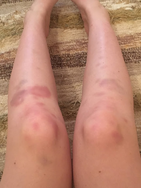 bruised knees