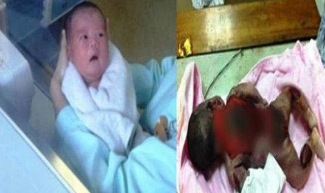 Nurse Lalai.Bayi 12 Hari Maut Terpanggang Dalam Inkubator.