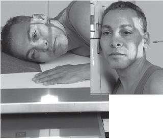 lateral xray facial bones