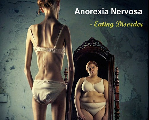 Anorexia Nervosa, An Eating Disorder
