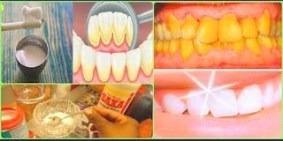 [ASTUCE] Le VRAI secret de Grand mère des dents blanches.