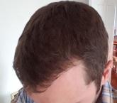 saç ekimi sonrası