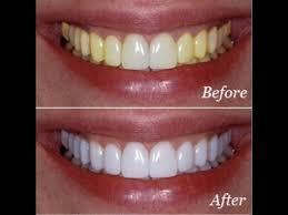 Cách làm trắng răng nhanh nhất hiệu quả SUỐT ĐỜI chỉ sau MỘT GIỜ 6