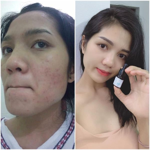 Serum trị mụn Lumos acne