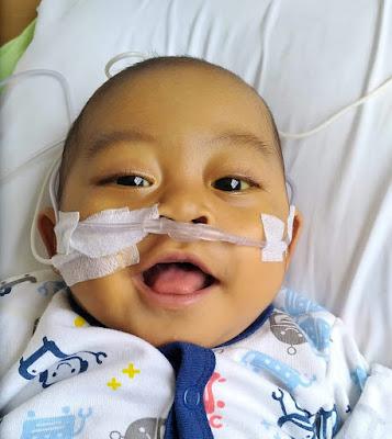 SMSI Lampung Galang Donasi Bantu Dzili Penderita Atresia Bilier