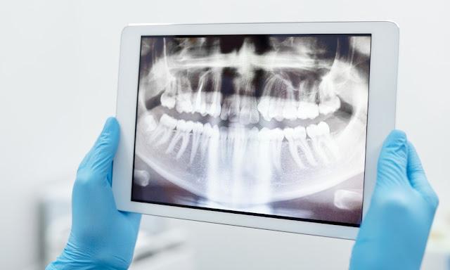 Kapan Waktu yang Tepat Pergi ke Klinik Gigi Yogyakarta?