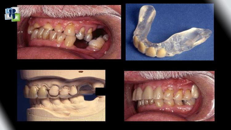 ترميم الأسنان المسحولة و اختبار زيادة البعد العمودي بالجبائر الاطباقية