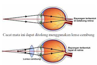 "Hipermetropi atau rabun dekat adalah mata yang tidak dapat memfokuskan benda pada jarak dekat. Walaupun benda-benda jauh biasanya terlihat jelas, titik dekat (PP) agak lebih besar dari mata ""normal"" 25 cm, yang menyebabkan sulit membaca. Kelainan ini disebabkan lensa mata terlalu pipih sehingga bayangan benda yang dilihat terbentuk di belakang retina."