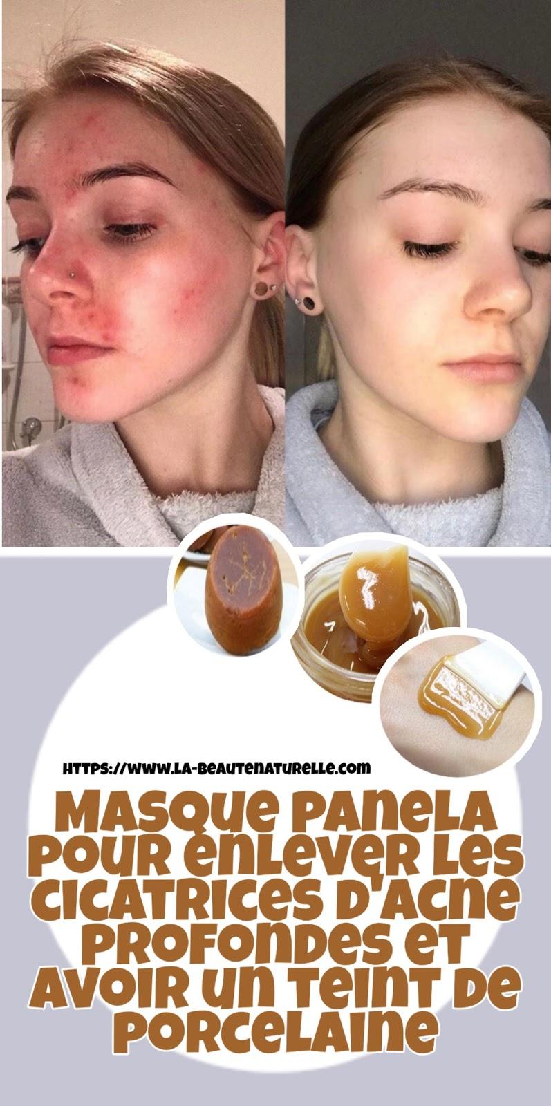 Masque panela pour enlever les cicatrices d'acné profondes et avoir un teint de porcelaine