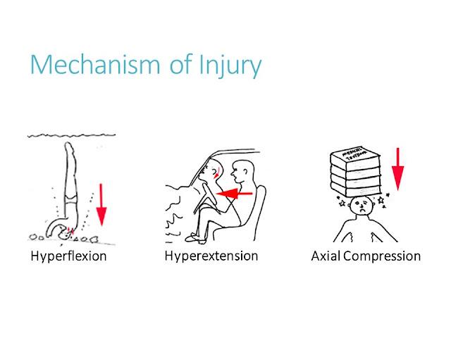 Mechanism Cervical Spine Injuries