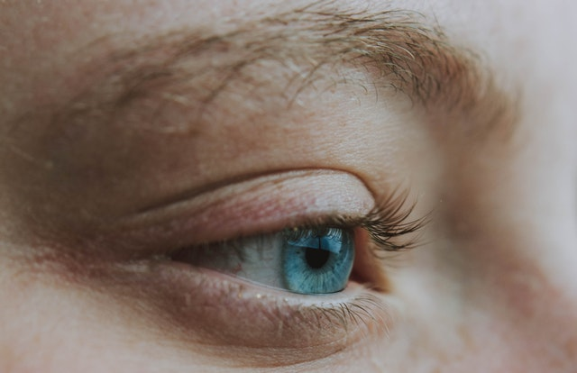 treatment for under eye wrinkles