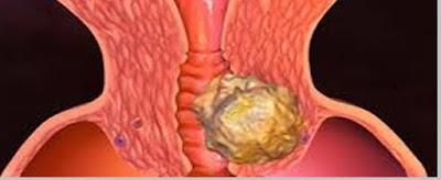 penyakit kelainan sistem reproduksi manusia