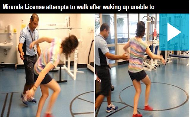 Aneh, Wanita Ini Tiba-Tiba Lupa Cara Berjalan Saat Bangun Tidur