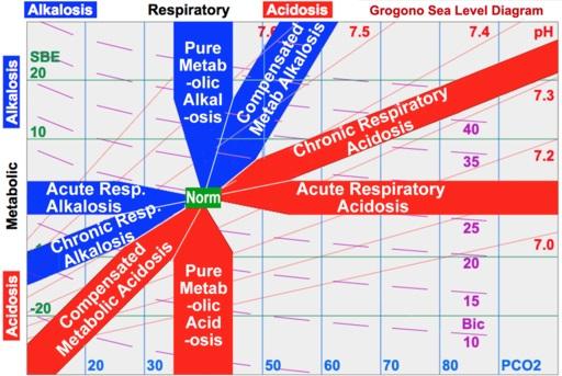 Asuhan Keperawatan Asidosis Respiratorik