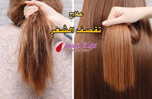 علاج تقصف الشعر الشديد بدون قص إليك اهم النصائح
