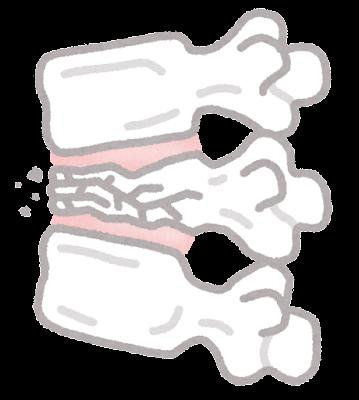 脊椎圧迫骨折のイラスト