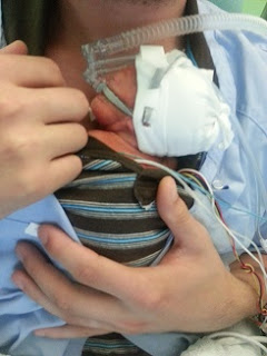 jumeaux-jumelles-prématurité-peau à peau-réanimation néonatale