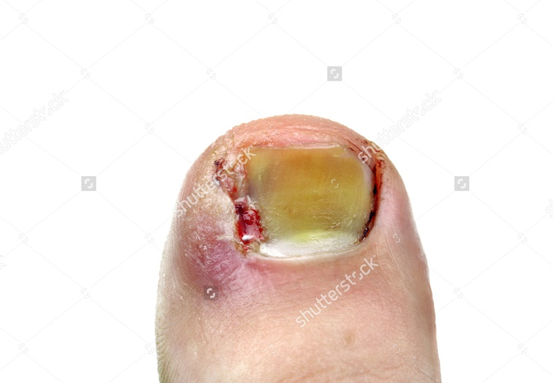 Most Powerful Home Remedies for Ingrown Toenail