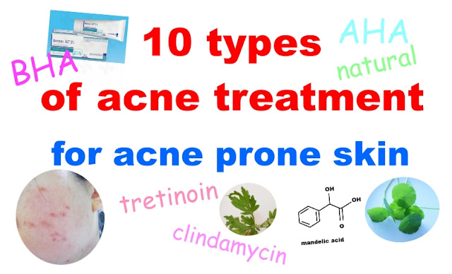 10 types of acne treatment for acne prone skin