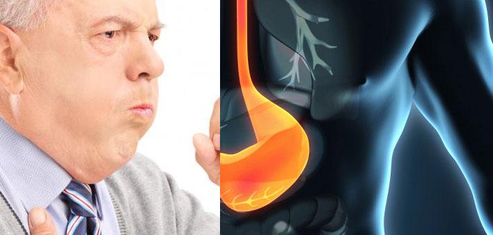 علاج السعال الناتج عن ارتجاع المرئ كحة الحموضة