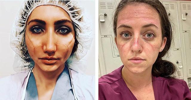 «Эти раны не пройдут — они останутся внутри нас»: фото девушек-медиков со следами от масок на лицах