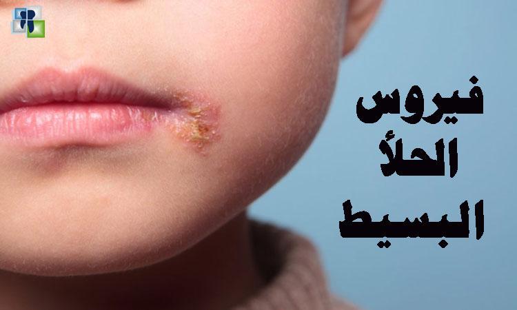 فيروس الحلأ البسيط و حالات الاصابة في عيادة الأسنان
