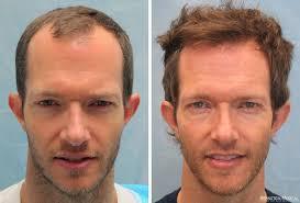 saç ekimi öncesi ve sonrası foto 2
