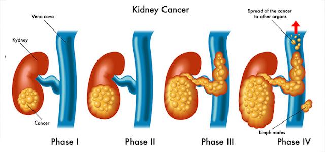 ما هو سرطان الكلى؟