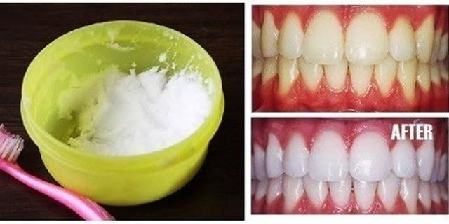 Tips Dan Fakta Putihkan Gigi Anda Dalam Masa 3 Minit Sahaja Ikuti