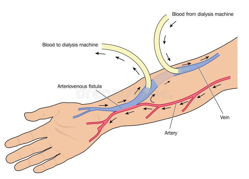 Arteriovenous fistula (AV fistula)