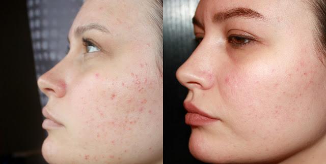 акне, проблемная кожа, уход за лицом, Салонная косметика, Janssen Cosmetics, акне, проблемная кожа, уход за лицом, Салонная косметика, Janssen Cosmetics отзывы, Janssen Cosmetics OILY SKIN отзывы, Janssen Cosmetics OILY SKIN.