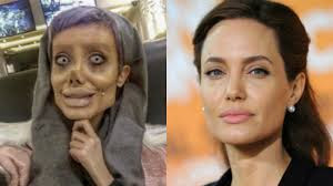 Mulher que fez 50 cirurgias para ficar idêntica a Angelina Jolie