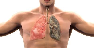Gejala Kanker Paru-paru Tidak Biasa Yang Harus Kita Ketahui