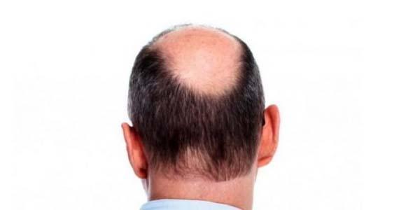Merek Hair Tonic Obat Penumbuh Rambut Botak, Hair Tonic Obat Penumbuh Rambut Botak, Hair Tonic Obat Penumbuh Rambut Botak, Hair Tonic Penumbuh Rambut, Hair Tonic Obat Rambut