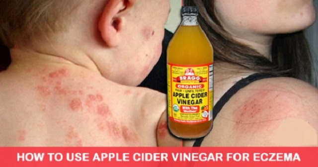 How To Treat Eczema Effectively And Naturally With Apple Cider Vinegar...
