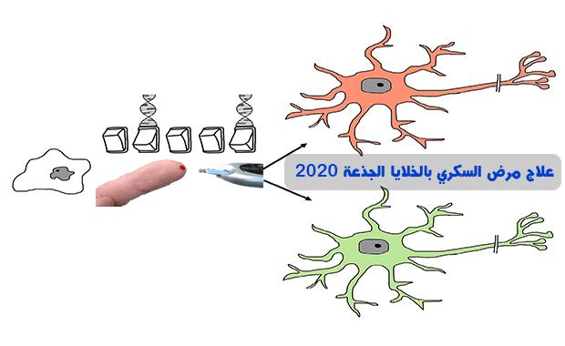 من ألم إلى أمل علاج مرض السكري بالخلايا الجذعة 2020