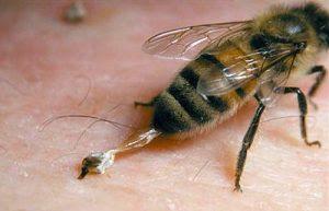 Apa Yang Harus Dilakukan Saat Kita Disengat Lebah ?