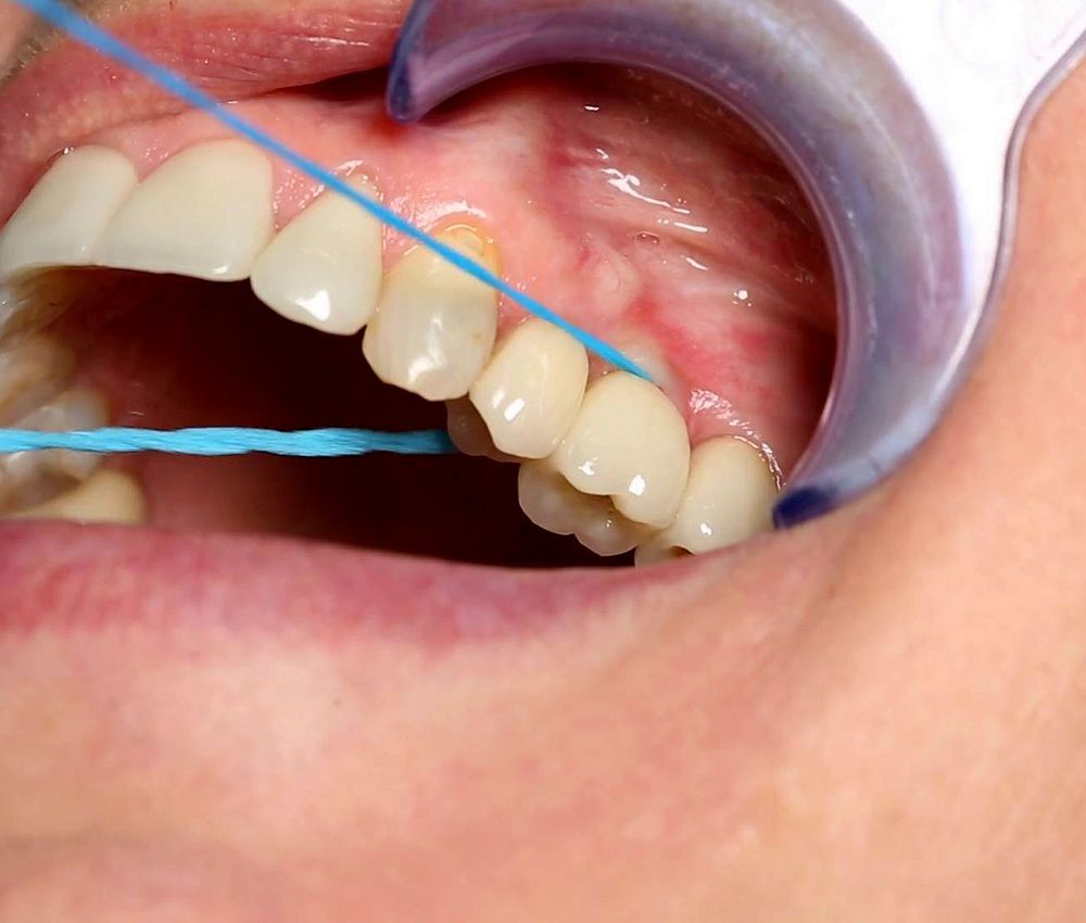 dental-implants-cleaning