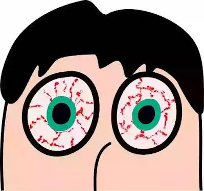 Dry Eye, Treatment of Dry Eye