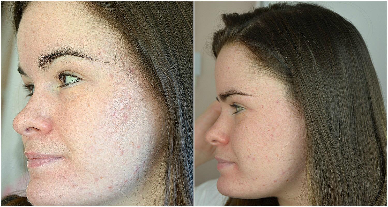 bilan du quatrième mois de traitement contre l'acné comparatif joue gauche