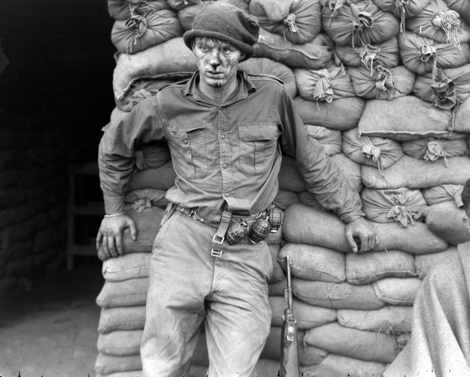 Private Heath Matthews (aged 20) of 'C' Company, 1st Battalion, Royal Canadian Regiment, awaits medical aid after a night patrol near Hill 166. Note the three No. 36 M Mk. I hand grenades on his belt and the late model US M1 carbine with bayonet lug.