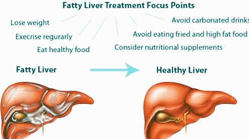 Signs of an Enlarged Liver