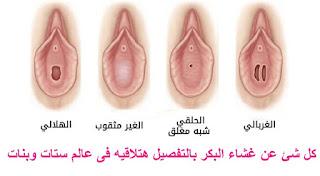 شكل غشاء البكارة المفضوض اسباب قطع غشاء البكر عند البنت قبل الزواج