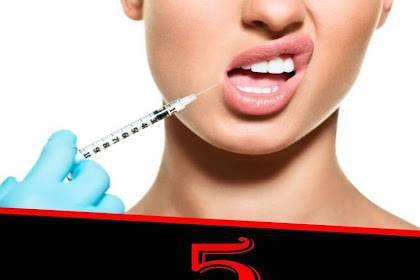 5 THINGS YOU SHOULD KNOW ABOUT LIP FILLERS FROM AN AESTHETIC INJECTOR