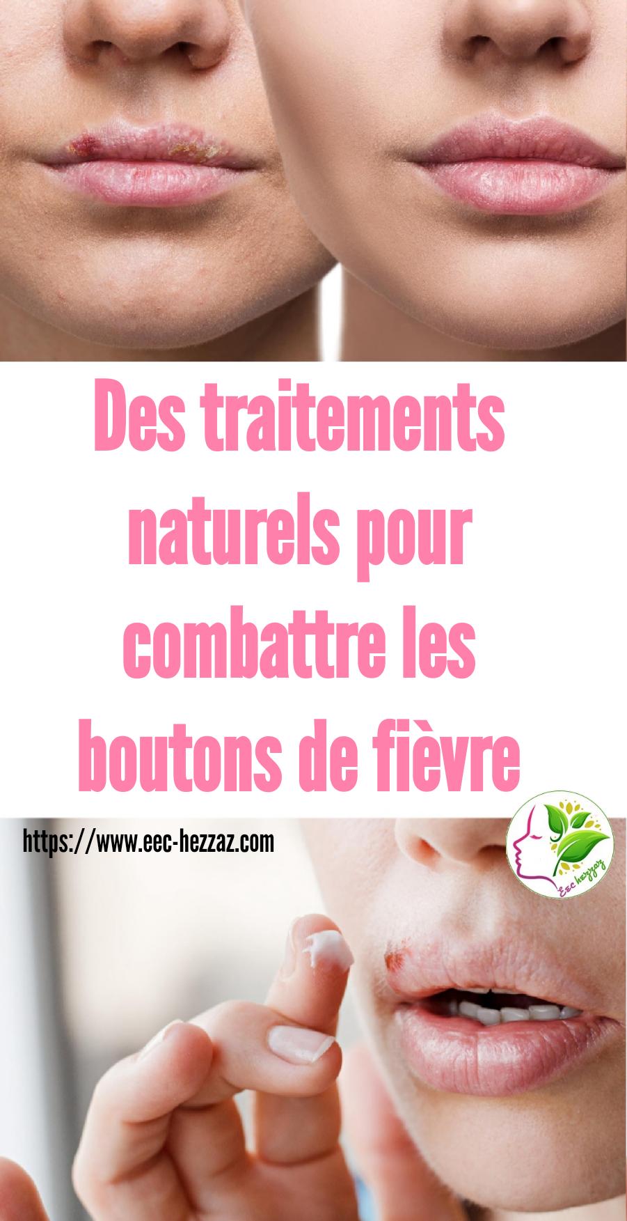 Des traitements naturels pour combattre les boutons de fièvre