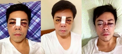Jim Paredes Admits He S The Man In Scandal Video: Lance Raymundo Photos BEFORE And AFTER Freak Gym Accident