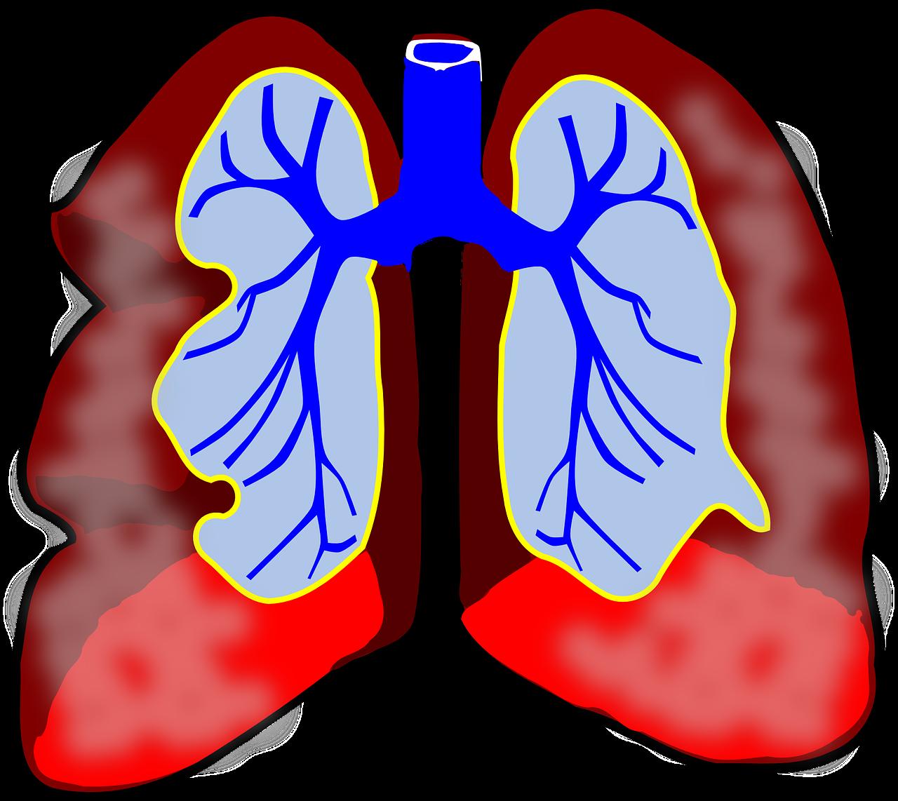 Obat Untuk Bronkitis Kronis
